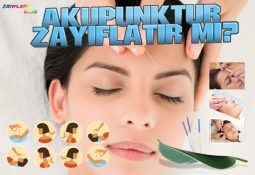 Akupunktur Zayıflatır mı?